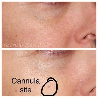 Tear Trough Fillers Gallery - Patient 24988583 - Image 2