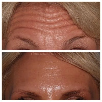 Botox/Dysport/Jeuveau Gallery - Patient 10910369 - Image 1