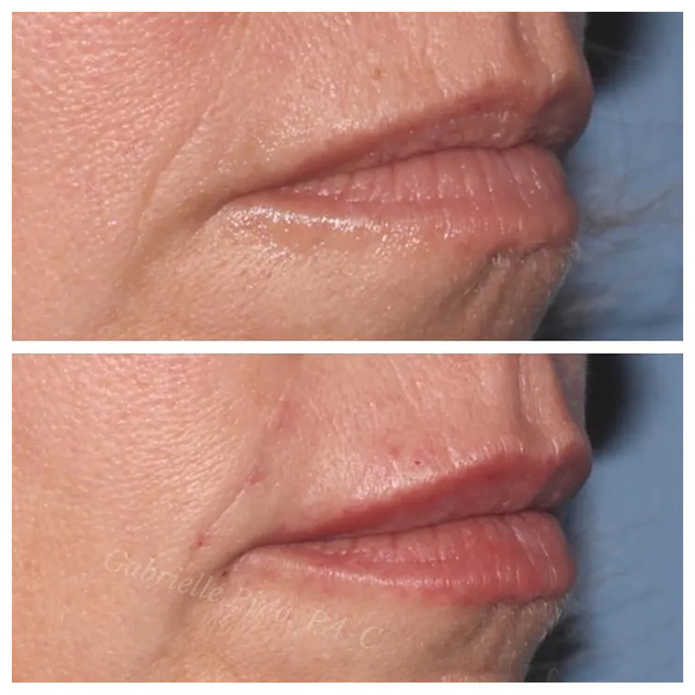 Restylane Before & After procedure