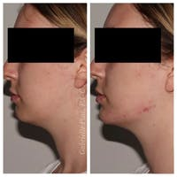 Jawline Contouring  Gallery - Patient 10910376 - Image 1