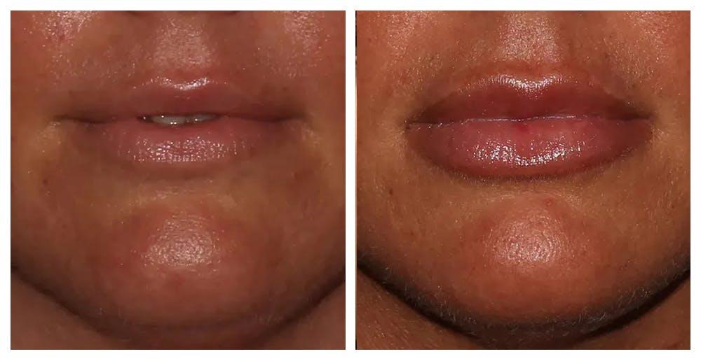 Lip Augmentation Gallery - Patient 10910409 - Image 1