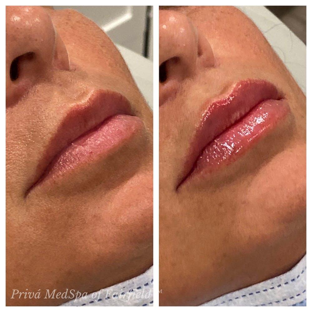 Lip Augmentation Gallery - Patient 30343125 - Image 1