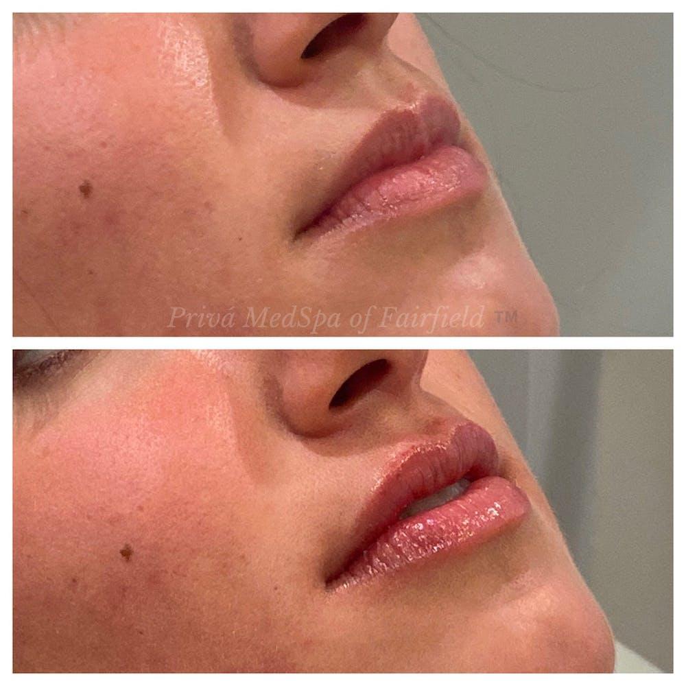 Lip Augmentation Gallery - Patient 36297007 - Image 1