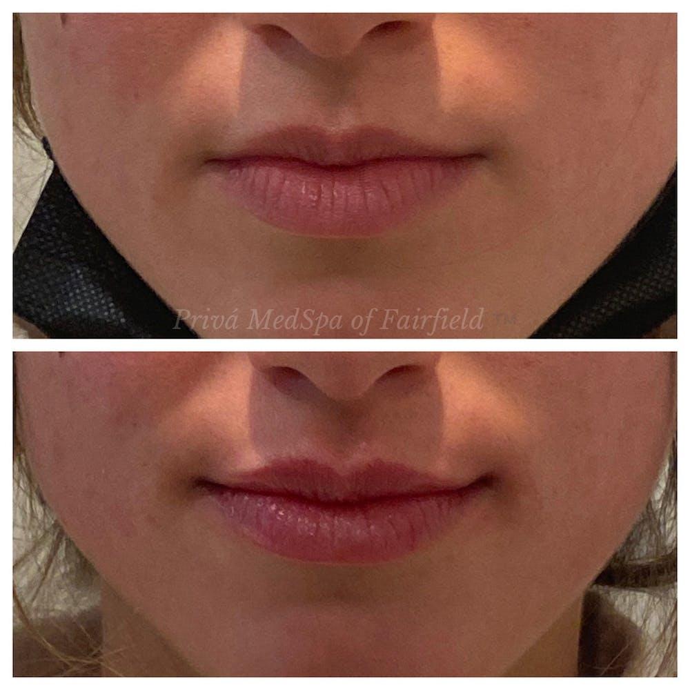 Lip Augmentation Gallery - Patient 36297007 - Image 2