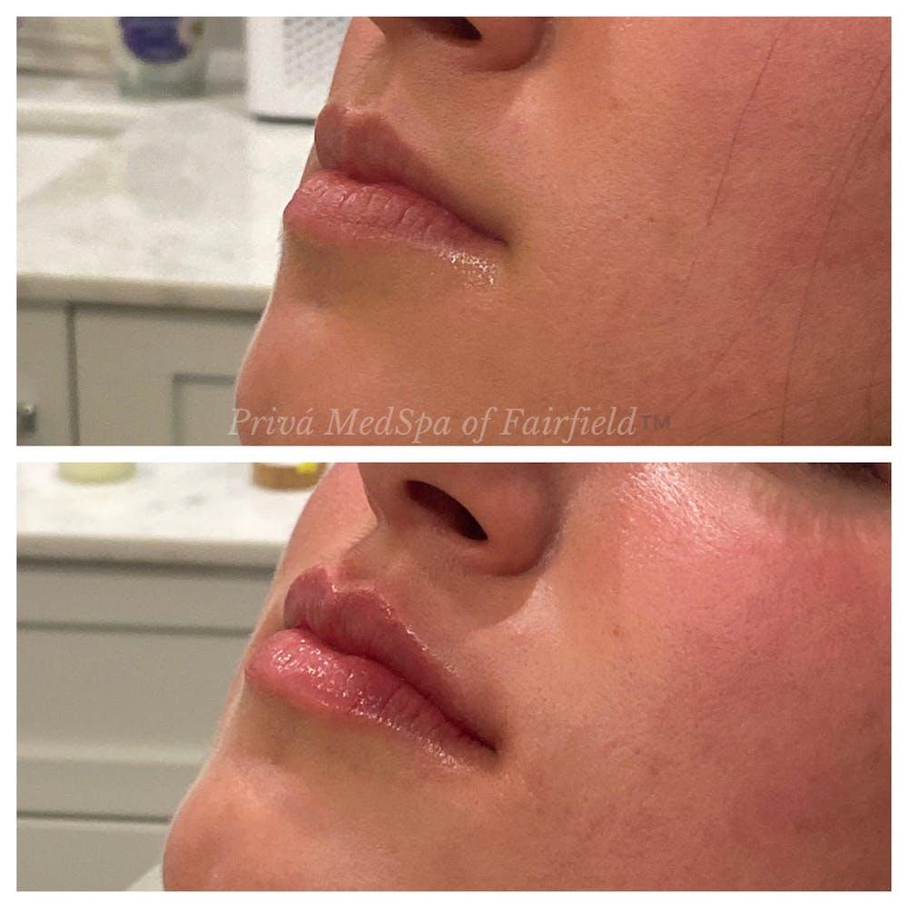 Lip Augmentation Gallery - Patient 36297007 - Image 3