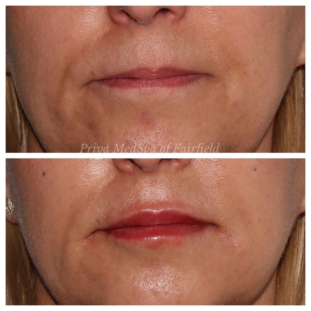 Lip Augmentation Gallery - Patient 45006213 - Image 1
