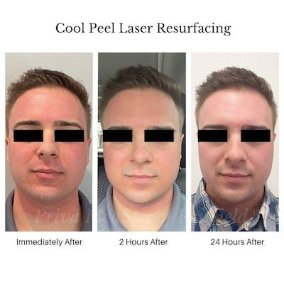 Laser Resurfacing Gallery - Patient 45006218 - Image 1