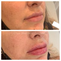 Lip Augmentation Gallery - Patient 45215638 - Image 1