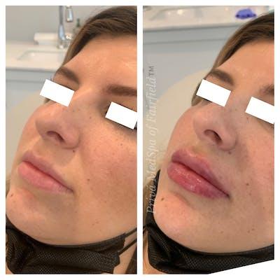 Lip Augmentation Gallery - Patient 45215638 - Image 2