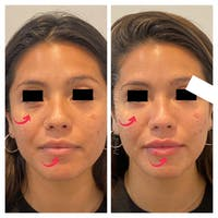 Lip Augmentation Gallery - Patient 45215648 - Image 1