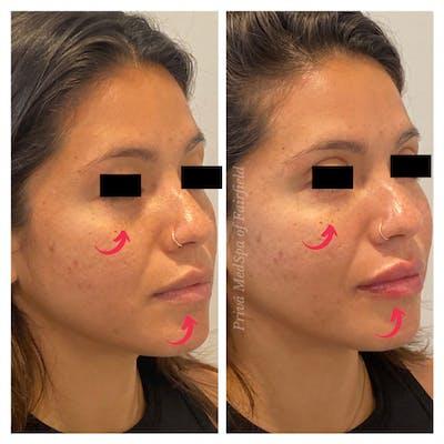 Lip Augmentation Gallery - Patient 45215648 - Image 2
