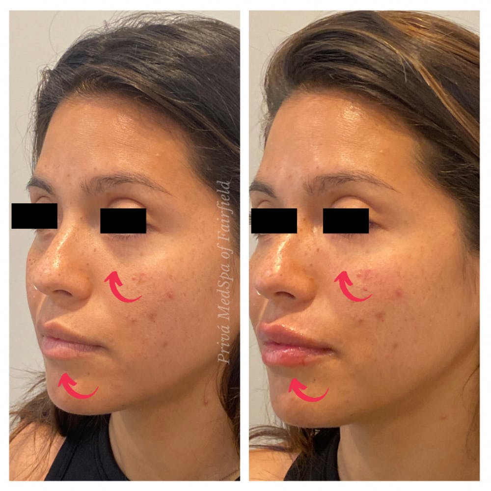 Lip Augmentation Gallery - Patient 45215648 - Image 3