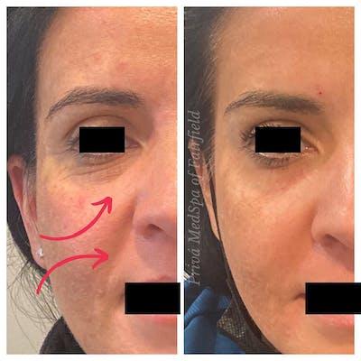 Botox/Dysport/Jeuveau Gallery - Patient 56164389 - Image 1