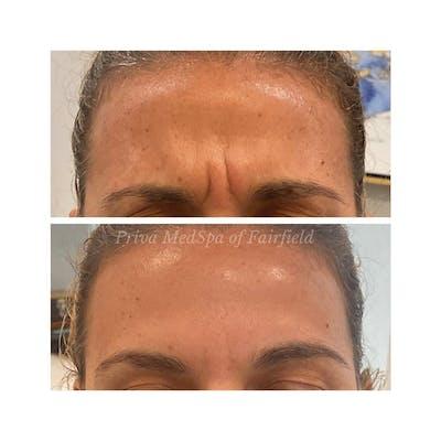 Botox/Dysport/Jeuveau Gallery - Patient 63993066 - Image 1