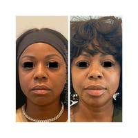 Lip Augmentation Gallery - Patient 63993102 - Image 1