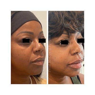 Lip Augmentation Gallery - Patient 63993102 - Image 2
