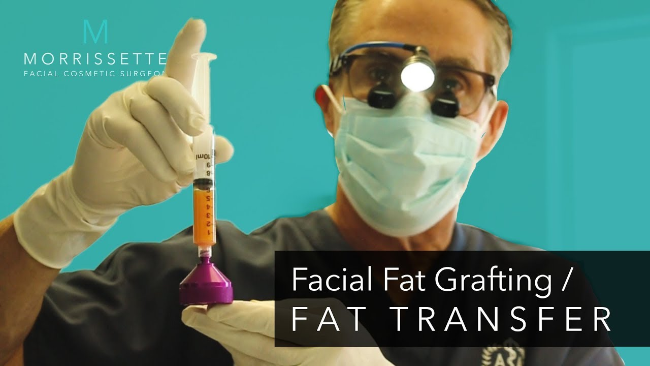 Facial Fat Grafting Ventura