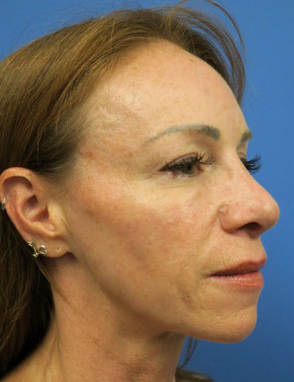 Cheek Implant Gallery - Patient 4751914 - Image 3
