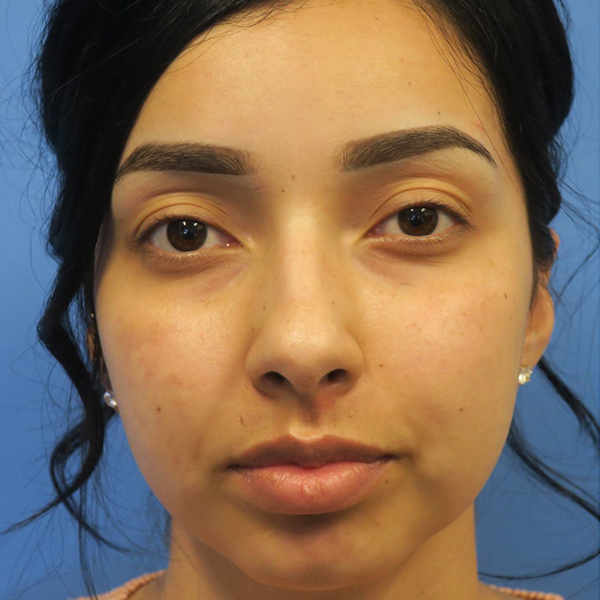 Buccal Fat Removal Gallery - Patient 4751921 - Image 1