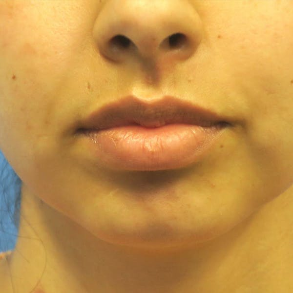 Buccal Fat Removal Gallery - Patient 4751921 - Image 3
