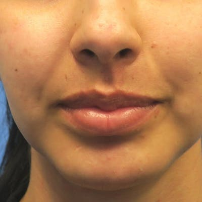 Buccal Fat Removal Gallery - Patient 4751921 - Image 4