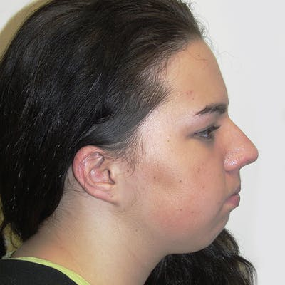 Chin Surgery Gallery - Patient 4751930 - Image 1