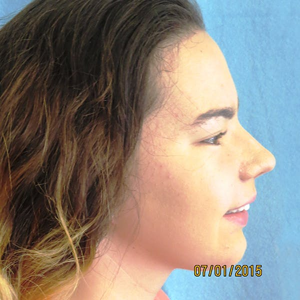 Chin Surgery Gallery - Patient 4751930 - Image 2