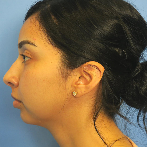 Chin Surgery Gallery - Patient 4751934 - Image 2