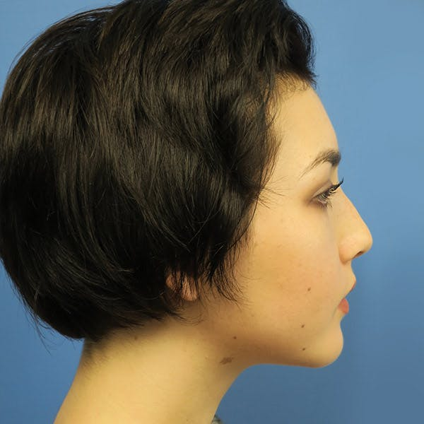 Chin Surgery Gallery - Patient 4751939 - Image 2