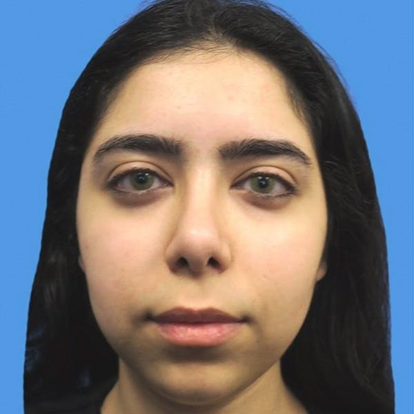 Chin Surgery Gallery - Patient 4751940 - Image 1
