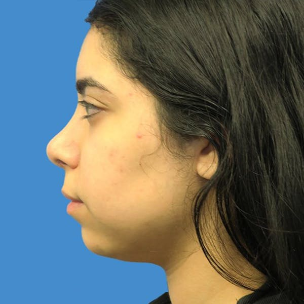 Chin Surgery Gallery - Patient 4751940 - Image 3