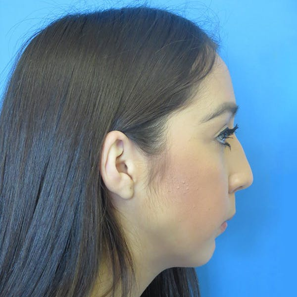 Chin Surgery Gallery - Patient 4751941 - Image 1