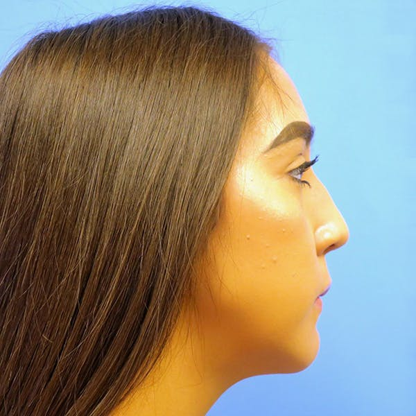 Chin Surgery Gallery - Patient 4751941 - Image 2