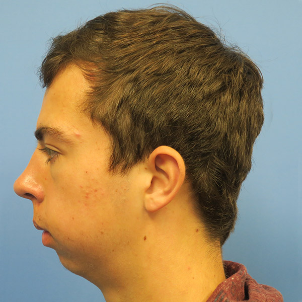 Chin Surgery Gallery - Patient 4751942 - Image 9