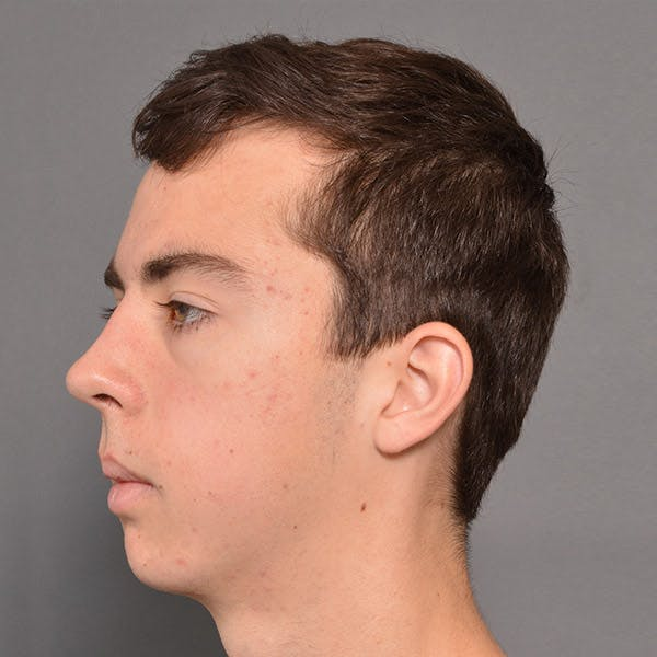 Chin Surgery Gallery - Patient 4751942 - Image 2