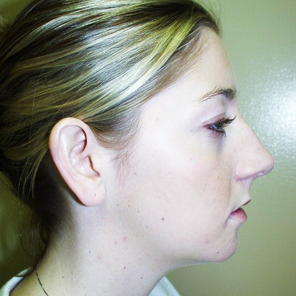 Chin Surgery Gallery - Patient 4751945 - Image 2