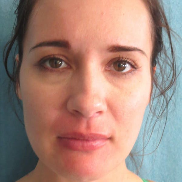 Dermal Fillers Gallery - Patient 4751965 - Image 2