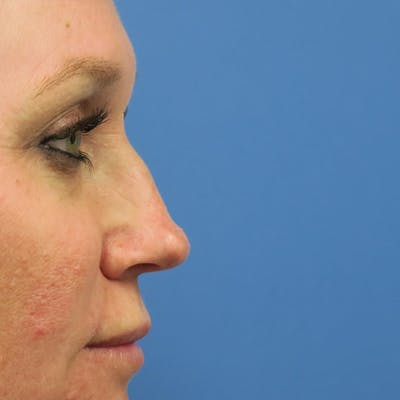 Dermal Fillers Gallery - Patient 4751967 - Image 1
