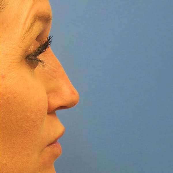Dermal Fillers Gallery - Patient 4751967 - Image 2