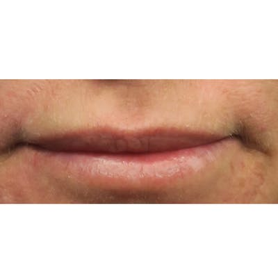 Dermal Fillers Gallery - Patient 4751968 - Image 1