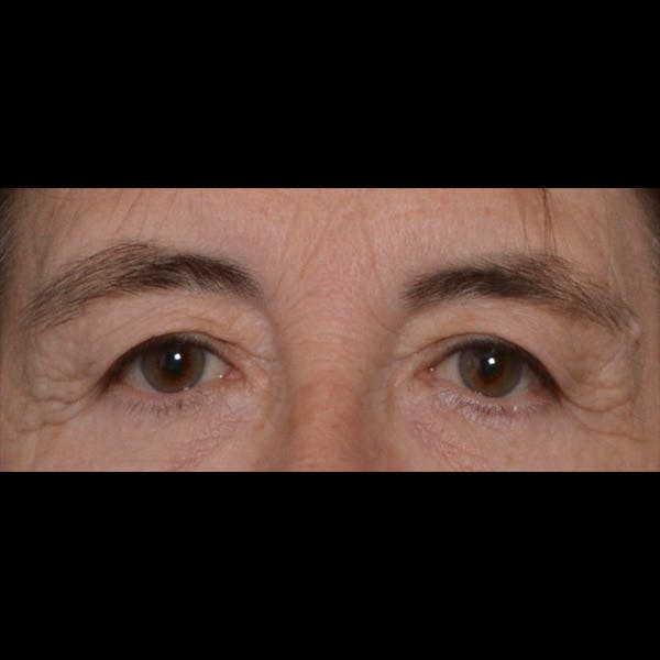 Eyelid Lift Gallery - Patient 4751978 - Image 1