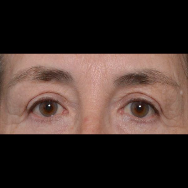 Eyelid Lift Gallery - Patient 4751978 - Image 2
