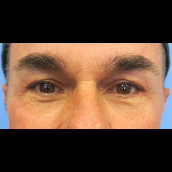 Eyelid Lift Gallery - Patient 4751979 - Image 9