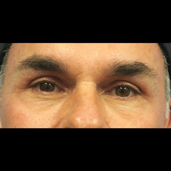 Eyelid Surgery Gallery - Patient 4751979 - Image 2
