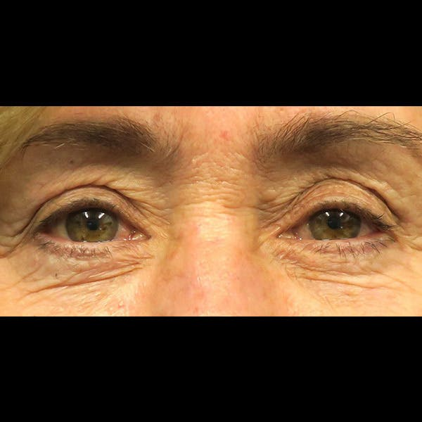 Eyelid Lift Gallery - Patient 4751981 - Image 1