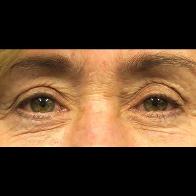 Eyelid Surgery Gallery - Patient 4751981 - Image 1