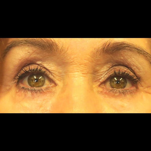 Eyelid Surgery Gallery - Patient 4751981 - Image 2
