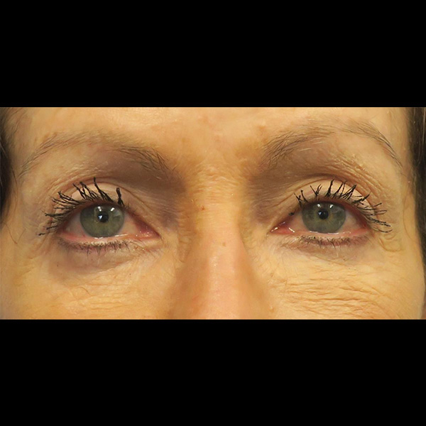 Eyelid Lift Gallery - Patient 4751982 - Image 12
