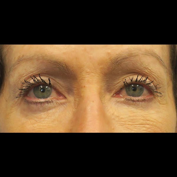 Eyelid Lift Gallery - Patient 4751982 - Image 1