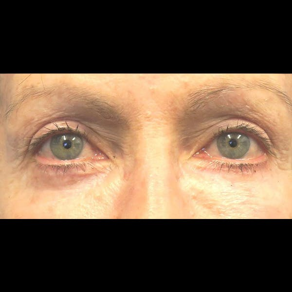 Eyelid Lift Gallery - Patient 4751982 - Image 2
